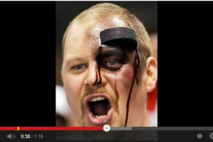 Not for the squeamish.  Most horrific sports injuries EVER.
